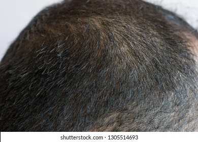 Cropped shot view of Asian men head with few grey hair growing. Hair turns white when the pigmentation cells responsible for colour (melanin) stop being produced.