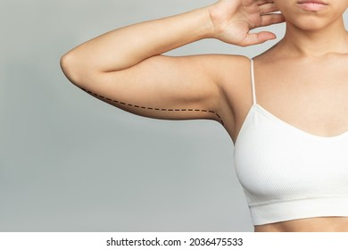 Cropped shot of a young woman with excess fat on her upper arm with marks for liposuction or plastic surgery isolated on a gray background. The loose and saggy muscles. Overweight