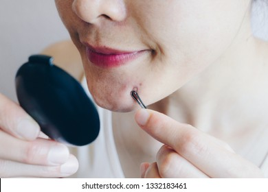 Cropped shot of young woman using tools to squeeze pimples and acne from her face. Problems with acne and scar on the female skin.