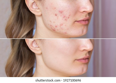 Cropped shot of a young woman's face before and after acne  treatment on face. Pimples, red scars on the cheeks and chin of the girl. Problem skin, care and beauty concept. Dermatology, cosmetology