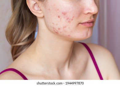 Cropped shot of a young woman's face with the problem of acne. Pimples, red scars on the cheeks and chin of the girl. Problem skin, care and beauty concept. Dermatology, cosmetology