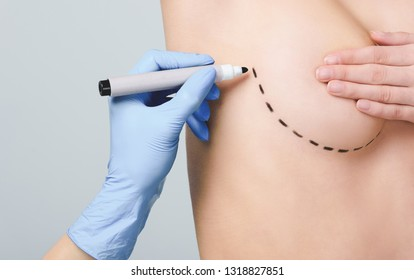 cropped view of doctor marking lines under breast for plastic surgery, isolated on grey