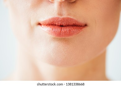 cropped view of herpes on lips of woman isolated on white