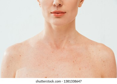 cropped view of nude woman with melanoma isolated on white