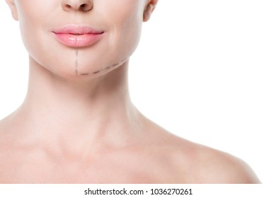 Cropped view of woman with painted lines on face for plastic surgery isolated on white