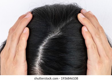 Cropped view of woman top's head with part of her thin hair, she had hair loss problem. Female pattern hair loss can progress from a widening part to overall thinning.