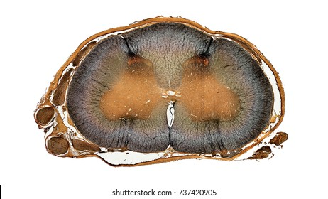 cross section cut of spinal under the microscope