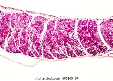 Cross-section of skeletal muscle. Photo under microscope
