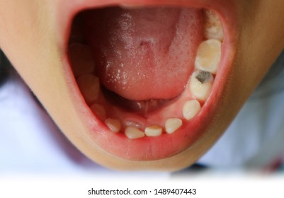 Crowding teeth. Lower permanent tooth up insert the milk tooth that has not dropped