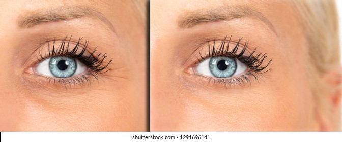Crow's feet reduction, female eyes before and after botulin trea
