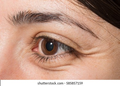 Crow's feet and wrinkles in eye