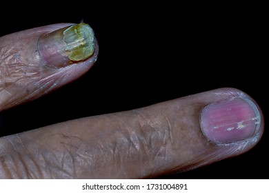 Crumbling finger nails in diabetes and/or old age, and also white spots on nails.