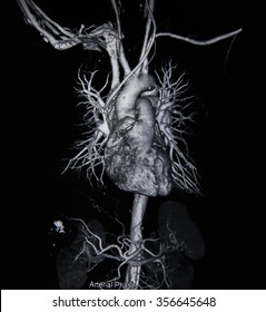 CT angiographphy 3D  take photo from film x-ray