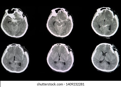 CT brain scan image of a patient with severe skull depression fracture at left frontal parietal area with left zygomatic arch and both maxillary sinuses fractures with small subarachnoidal hemorrhage.