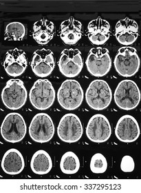 CT brain of unconscious 60 years old: Revealed hemorrhage at left corona radiata, generalized cortical brain atrophy,old infarction at right temporal lobe,internal capsules, thalami,semiovale, and BG