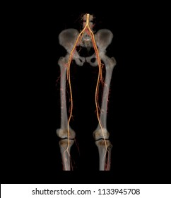 CT SCAN 2D and 3D rendering of lower extremity. CTA femoral artery run off from CT scanner.