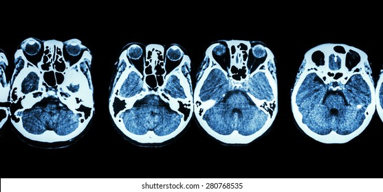 CT scan of brain and base of skull ( show structure of eye , ethmoid sinus , cerebellum , cerebrum, etc )