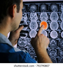 CT scan of the brain. MRI of the brain. ischemic stroke. Doctor, looking at the roentgenogram of a computer tomography on a negatoscope and finds an ischemic stroke.