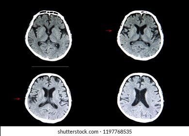 A CT scan of the brain of a patient with cerebral infarction showing a wedge shape hypodense lesion in the right parietal area and generalized cerebral atrophy