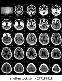 CT scan of brain without contrast media.