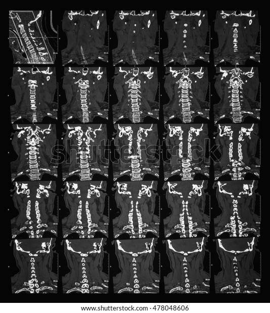 Ct Scan Cervical Spine Cspine Case Stock Photo (Edit Now