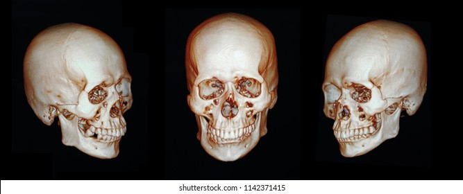CT scan facial bone 3D of human skull