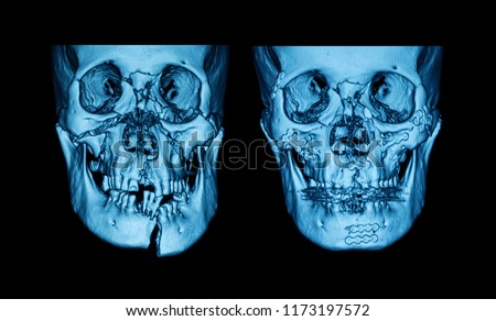 Fractures of the facial bones due time