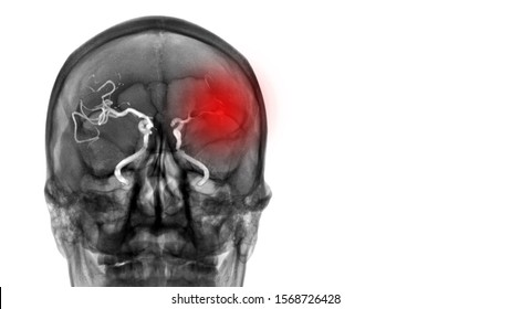 CT Scan(Computerized Tomography) show absence of blood flow to left brain. The patient has ischemic stroke or cerebrovascular disease from atherosclerotic stenosis. Neurology investigation concept