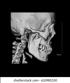 CT(computed tomography) scan of facial bone, case of facial asymmetry, lateral view