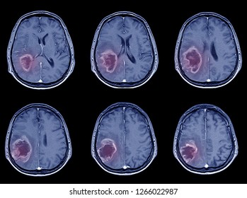 CT-Scan Brain Imaging for hemorrhagic stroke or Ischemic stroke ( infarction ) medical concept.blue tone color.