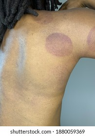 Cup marks remaining on a Black person's back and arm after cupping therapy