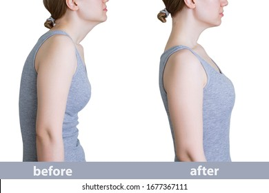 Curvature of posture. Direct posture. Caucasian woman in gray tank top before and after.