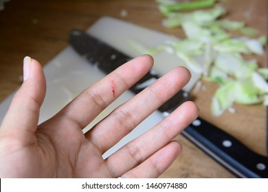 A Cut of finger in the kitchen