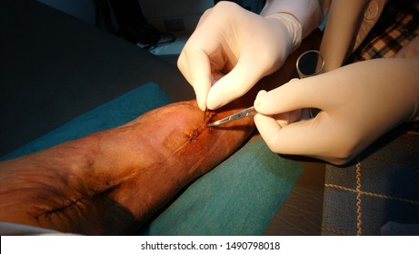 Cut the wound into silk: an image of silk cutting with the right hand, using a blade to cut the thread into the right hand stitch, holding the pliers. With orange lights to brighten the silk