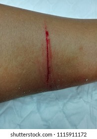 cut wound on the leg