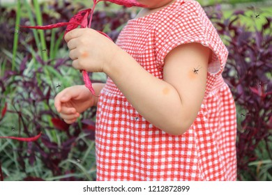 cute asian baby girl has skin rash and allergy from mosquito bite and sucking blood while playing outdoor