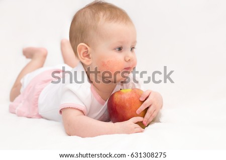 A cute baby girl with a dermatitis on her cheeks is eating a red apple on an isolated white background. Food allergy