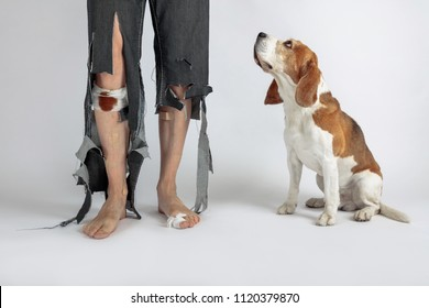 Cute Beagle and his owner in torn pants and bitten feet. Conceptual image on the theme of animal education.