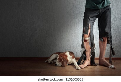 Cute Beagle and his owner in torn pants and bitten feet. Conceptual image on the theme of animal education. Copy space.