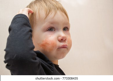 Cute child 1 - 2 years old with eczema or allergic rash on his face, crying in pain