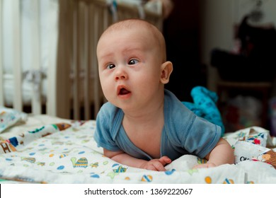 Cute little baby with strabismus in bed