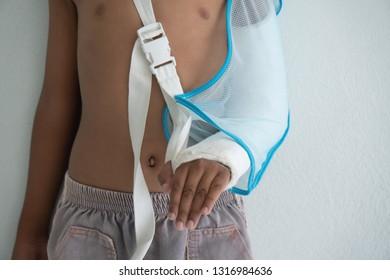 cute little boy arm broken and splint