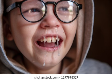 Cute little boy from school for children with poor eyesight holds inhaler in his hands to spray medication. Unhappy chilld cries intensely with tears and snot. Shallow focus