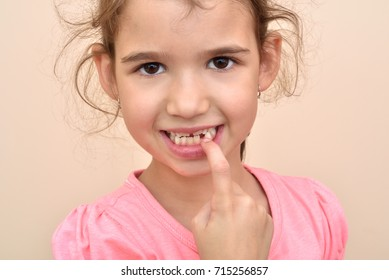 Cute young girl showing a missing tooth with her index finger