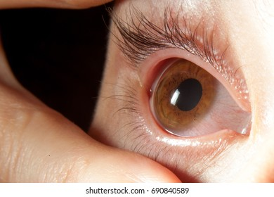 cornea teen babes