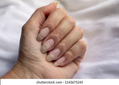 Damage of the nail after using shellac or gel-lacquer. Detachment on the nails. Injury of the nail. Shellac ruined nails.
