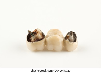damaged cermet prosthesis with broken parts of teeth