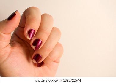 Damaged female manicure. Home manicure in quarantine.