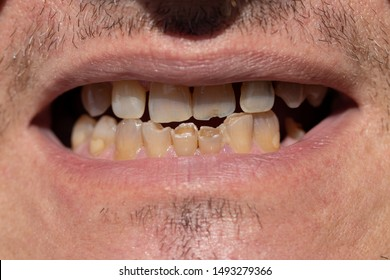 Damaged front teeth, chips, cracks, fillings. Close-up of bad adult male front teeth