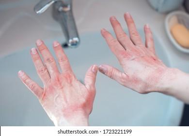 beschädigte Hände mit ausgedehntem Waschen